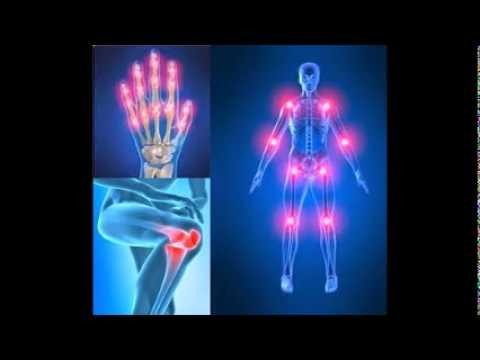 Es necesario realizar en el caso de fractura de los huesos de la espinilla y daños en el tobillo