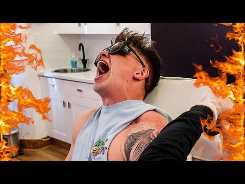 GETTING MY TATTOO LASERED OFF