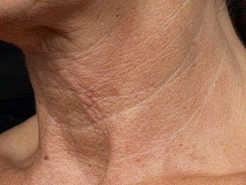 Человек без пигментации кожи
