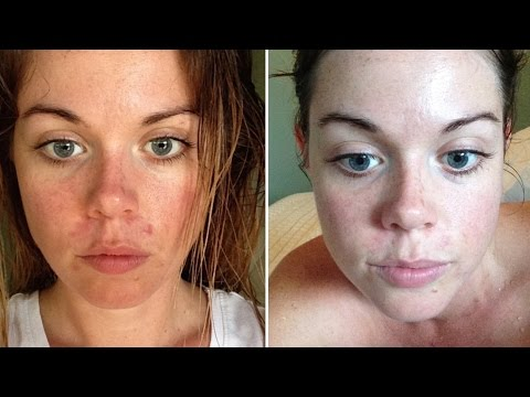 Video HOW TO HEAL YOUR SKIN WITHIN 24 HOURS - Raw Nourishment