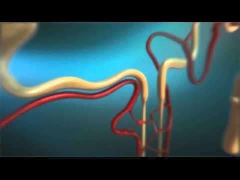 Ungüento para úlceras diabéticas