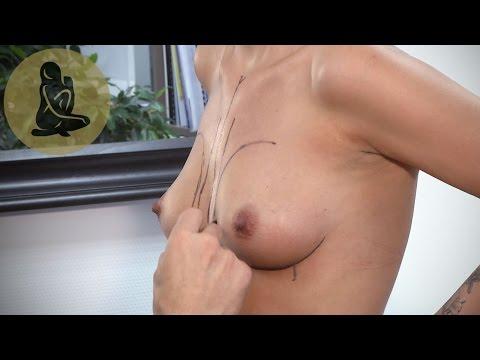 Hat die Brust nach der Operation nach der Abtragung des Fibroadenoms angeschwollen