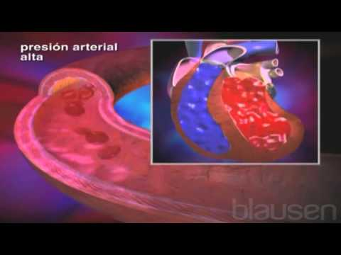 Tratamiento de la hipertensión Matsesta