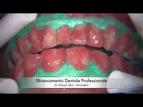 Sbiancamento Professionale dei Denti (Teeth Whitening)