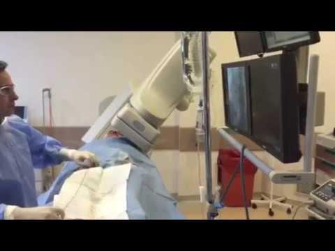 Çarpıntı, ritim bozukluğunda  yakma işlemi elektrofizyolojik çalışma ve ablasyon işlemi