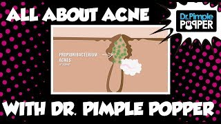 All About Acne - with Dr. Pimple Popper!