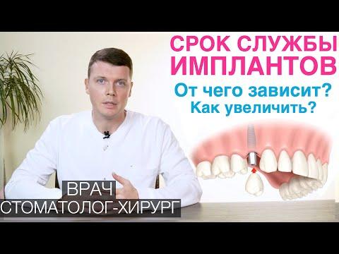 Срок службы зубных имплантов. От чего зависит срок службы имплантов для зубов