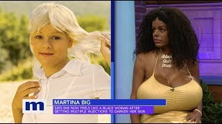 White woman gets chemical skin injections to turn her skin dark, now claims she is a black woman. [