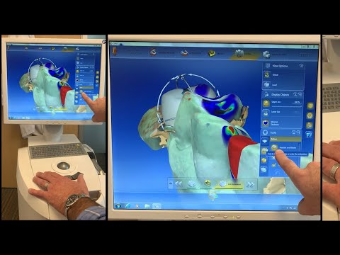CEREC Dental Assistant Training Basics - Single Crown Setup, Imaging, Design - Overview