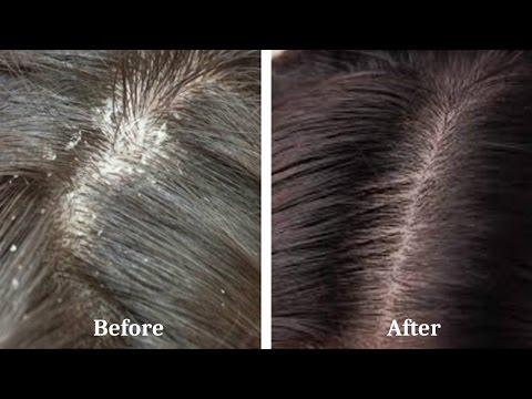 Das mineralische Öl für das Haar Isopaare