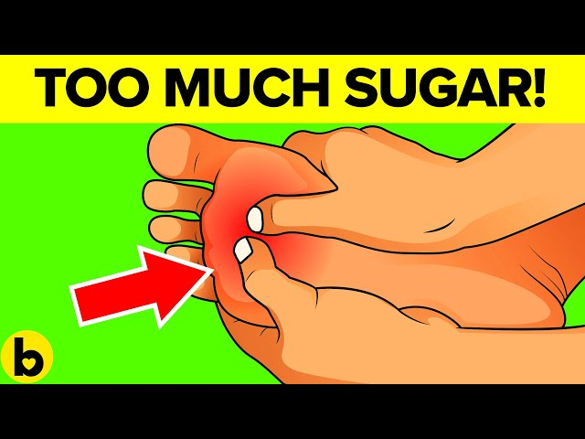 8 Warning Signs That You Are Eating Too Much Sugar