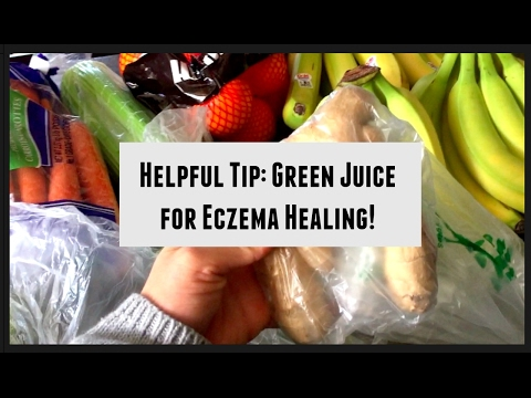 Video Eczema Q & A: Supplements, Green Juices, Raw Food Diet, Night Shades & Helpful Tip Shared!