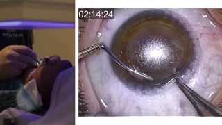 London Vision Clinic   ReLEx SMILE   Live laser eye surgery   Professor Dan Reinstein