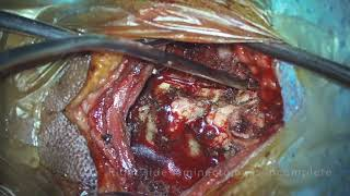 Cervical laminectomy