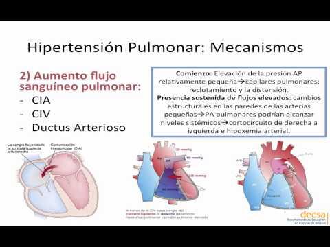 Las normas de atención médica para los pacientes con hipertensión