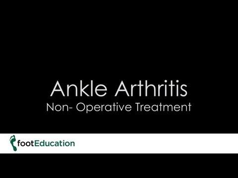 Medikamente zur Behandlung von Arthrose des Gelenkes des Fußes