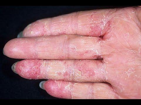 Сколько лечиться от гепатита а