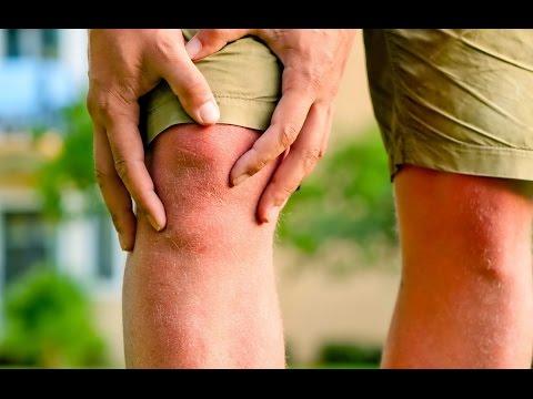 Косточка большого пальца на ноге покраснение и боль
