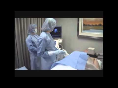 Darbība ar prostatas adenomas alternatīvu