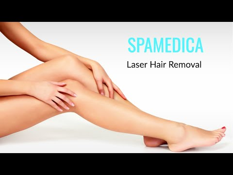 Video LightSheer Diode Laser (Hair Removal) in Toronto
