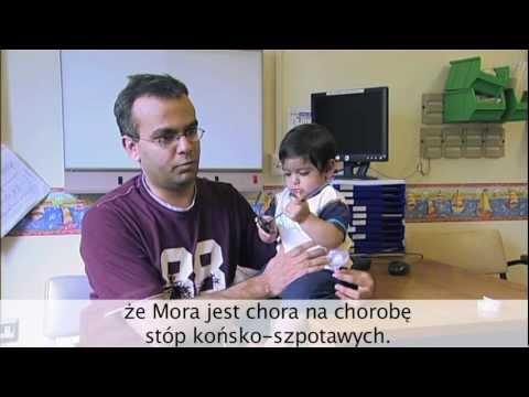 Płasko-koślawe zniekształcenie stóp u dzieci w wieku 2 lat
