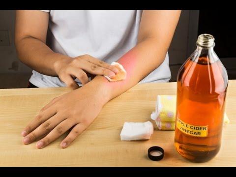 Las medicinas para la profiláctica y el tratamiento del hongo de las uñas