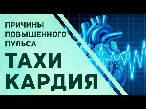 Тахикардия. Причины повышенного пульса. Гульнара Мазитова