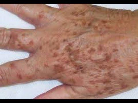 El tratamiento por los medios públicos onihomikoz de las uñas en los pies