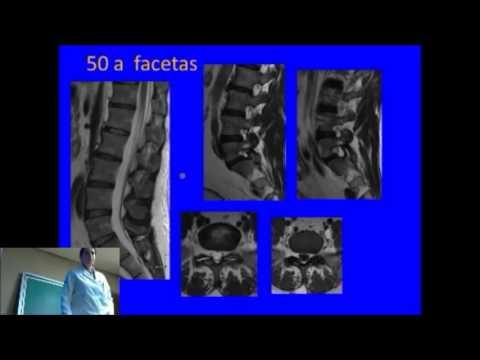 Osteocondrosis lumbar de etapa inicial