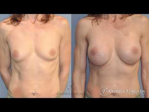 Aumentar los pechos sin cirugía