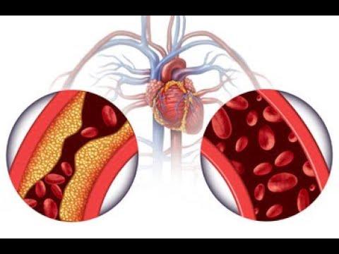Devisen Prävention von Hypertonie