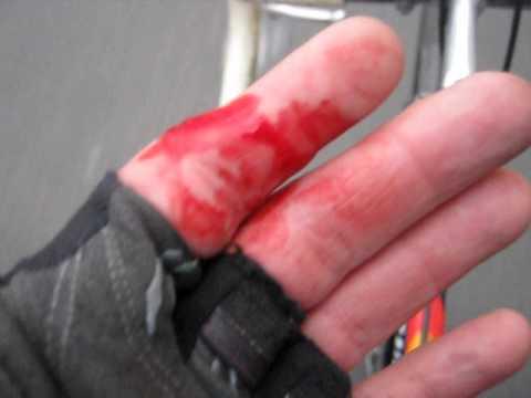 Der Zapfen auf dem Finger des Beines was, in den häuslichen Bedingungen zu machen