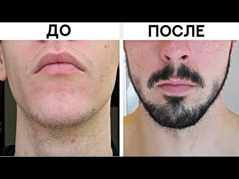 5 Способов Быстро Отрастить Бороду