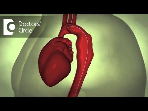 Behandlung der diabetischen traditionellen Medizin