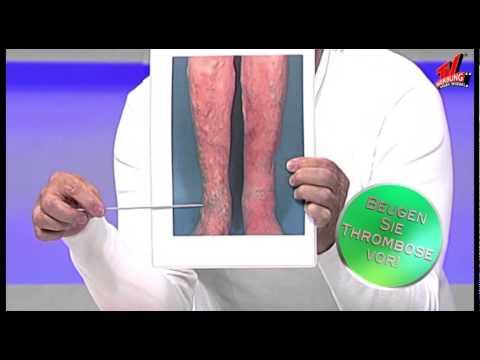 Das Medikament wenn tun die Venen auf den Beinen weh