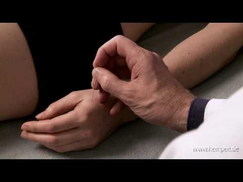 McLure Infusion für Gelenke, wie zu tun