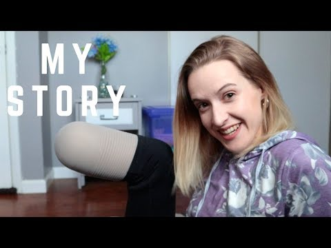 HOW I BECAME AN AMPUTEE - The real story [CC]