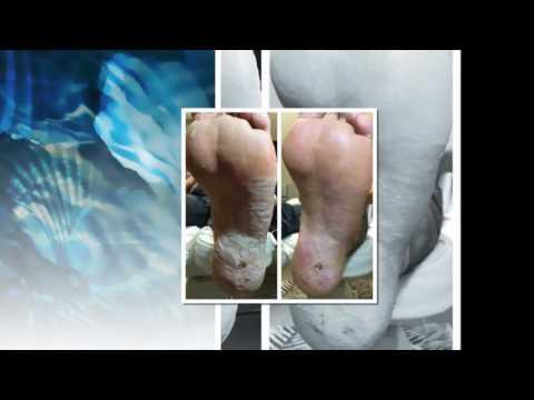 Paraziták az emberben a bőrben