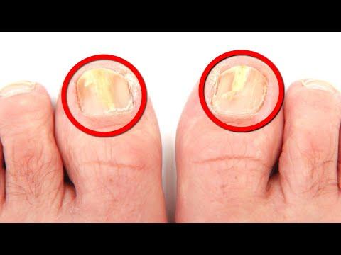 Complejo los tratamientos del hongo de los pie