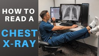 How to Read a Chest X-ray like a Radiologist!  (My Search Pattern)