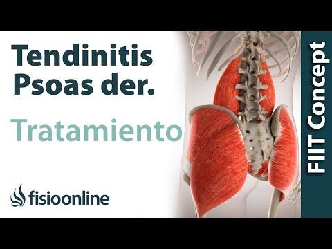 Que tienen en la osteocondrosis de la articulación de la rodilla