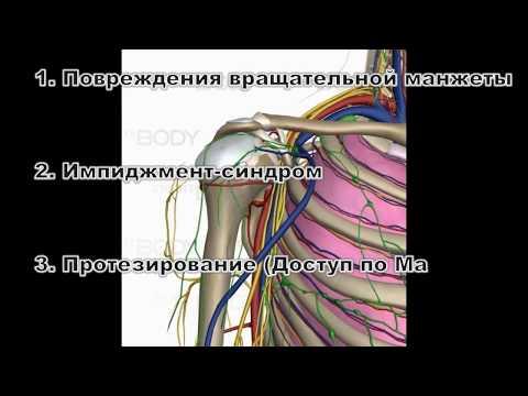 Ортопедические доступы к плечевому суставу. Ztravmer.