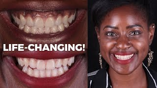 How I turned my black gums to pink (Life-changing Gum Depigmentation Experience)