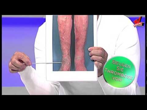 Warikos und die Venenentzündung die Behandlung