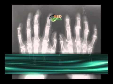 Cauze de dureri în articulații mici