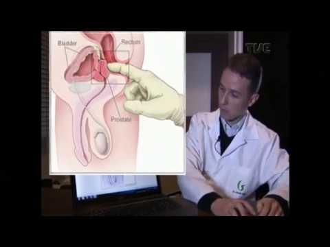 Uma imagem da glândula da próstata