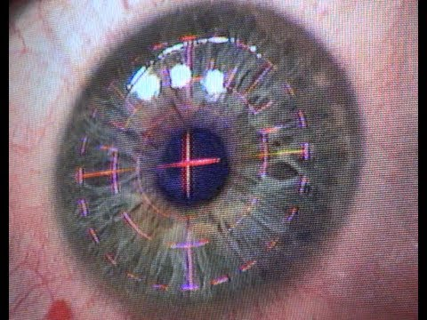The Operation - Eye Witness Laser Eye Surgery Day 1a