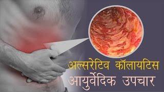 अल्सरेटिव कोलाइटिस का आयुर्वेदिक इलाज़  । Ulcerative Colitis Ayurvedic Treatment