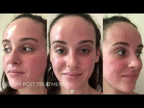 Acne & General Scarring