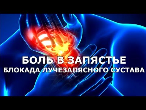Боли в запястье  Блокада лучезапястного сустава  Wrist joint injection
